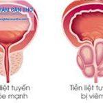 Viêm tuyến tiền liệt là gì? | Bạn có biết | Phòng khám Đa Khoa Cần Thơ