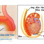 Điều trị viêm mào tinh hoàn hiệu quả | Phòng khám Đa Khoa Cần Thơ