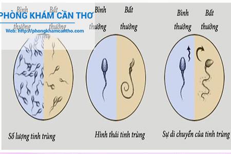 phân biệt giữa tinh trùng bình thường và bất thường